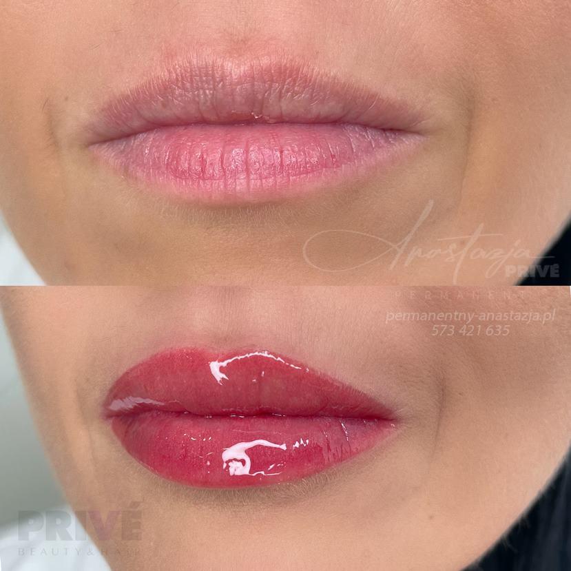 makijaż permanentny ust, usta permanentne, usta permanentny, usta permanentne kolory naturalne, permanentne usta, makijaż permanentny ust gojenie, makijaż permanentny ust jasny kolor, makijaż permanentny ust cena, permanentny ust, makijaż permanentny ust przed i po, usta permanentne kolory, usta permanentne gojenie, makijaż permanentny ust kolory, usta permanentne cena, pigmentacja ust, usta permanentne 3d, pigmentowanie ust, makijaż permanentny ust 3d, usta permanentne naturalne, usta permanentne po wygojeniu, permanentny makijaż ust, usta makijaż permanentny, kolory ust permanentnych, usta permanentne nude, makijaż permanentny ust po wygojeniu, makijaż permanentny ust gdańsk